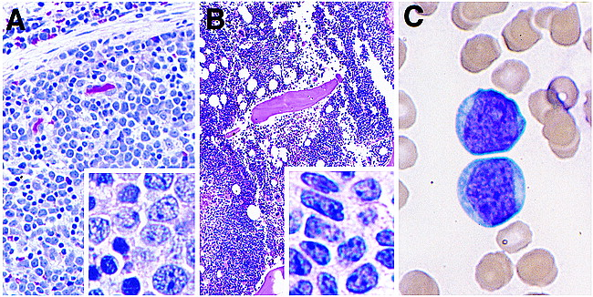 aggressive nk leukemia flow cytometrya) lymph node biopsy monomorphous infiltrate of medium sized cells with scant cytoplasm, round nuclear contours, finely granular chromatin, and numerous