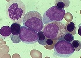 Image result for acute myelogenous leukemia.
